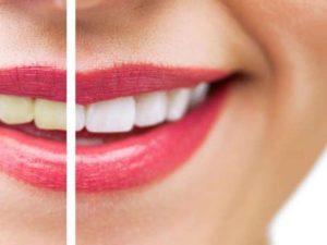 Sbiancamento denti a Rosolini